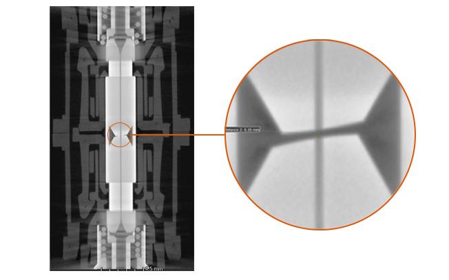 MRI view of the contaminated plugs